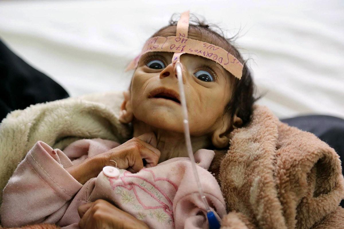 Bayi bernama Udai Faisal dimasukkan ke hospital untuk mendapat rwatan kekurangan nutrisi Hospital Al-Sabeen di Sanaa, Yaman - Maad Al-zikry / AP