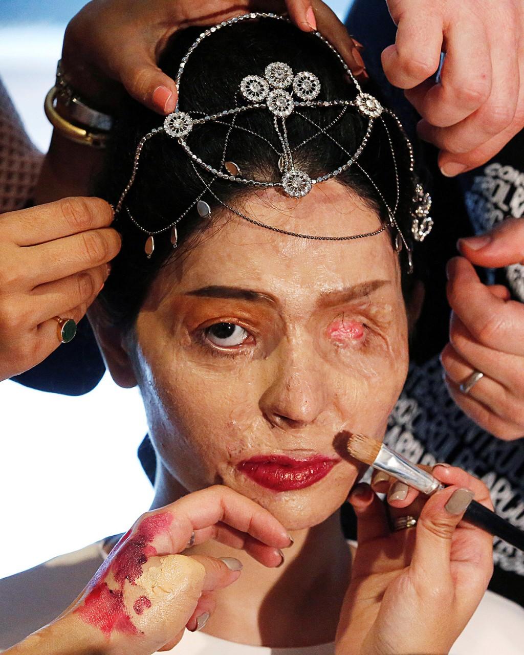 Model dari India Reshma Quereshi mangsa terkena Asid di wajah. - Lucas Jackson / Reuters
